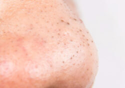 7 Quick Ways To Remove Blackheads At Home